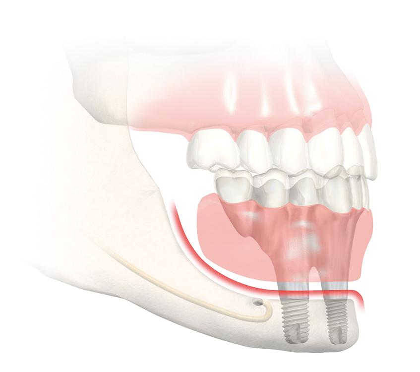 Implant dentaire Aix en Provence